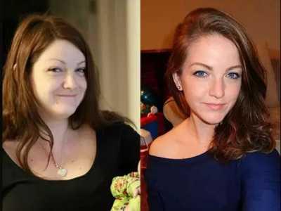 脸部瘦身 减肥前后脸型的惊人变化