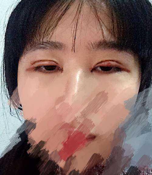 割了双眼皮和开眼角,都26天了,为什么还是肿的,眼角疤痕也很大,会不会