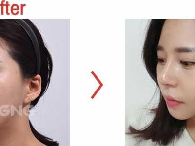 塌鼻子整形 案例对比图发来看看