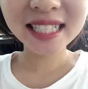牙齿美白仪哪个牌子好 什么牌子的美牙仪最好