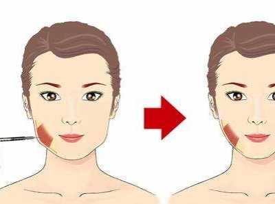 鞍山齐敏美容院瘦脸针 在鞍山齐敏注射瘦脸针的效果好不好
