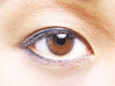 怎样消除眼部皱纹 眼部皱纹如何快速去除