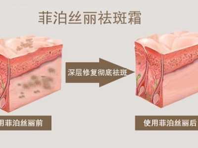 自制祛黄褐斑面膜 什么方法可以祛除黄褐斑