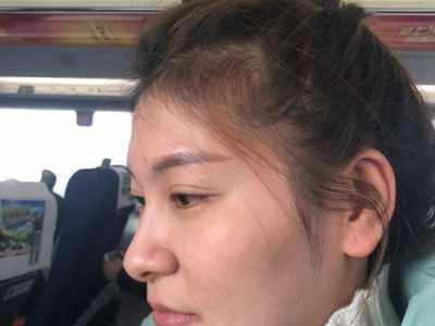 鼻尖整形 鼻尖美容术的整形案例